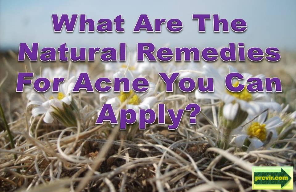 acne_natural remedies