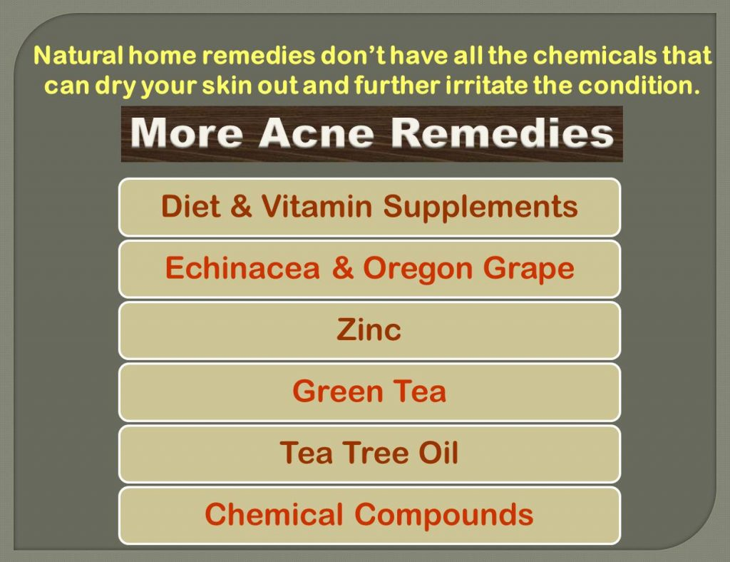 acne_natural remedies_2
