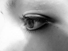 eye-wrinkle skin
